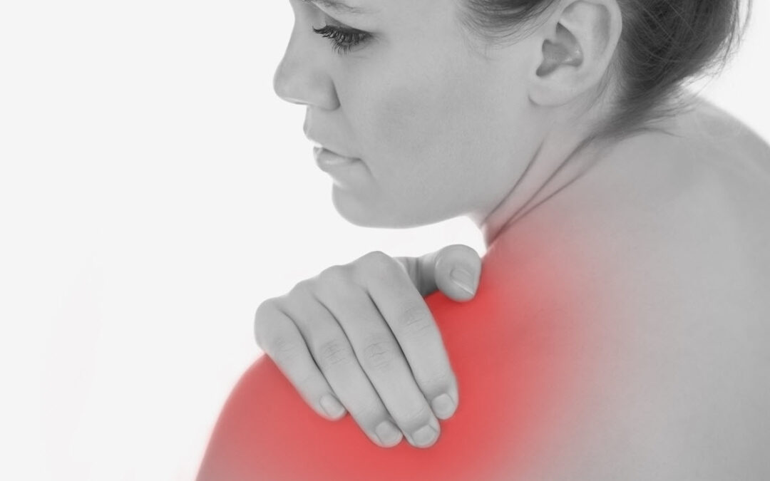 Thoracic Outlet Syndrome (TOS)